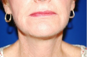 Facelift, Intense Pulsed Light  after 132103