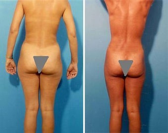 Liposuction before 636115