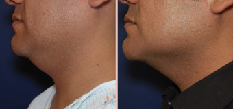 Jawline / Neck Lipo before 293426