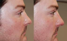 Non-Surgical Rhinoplasty with Silikon-1000 before 143571