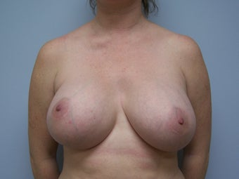 Breast Implant Removal before 589951