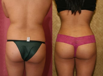 liposuction of back and buttocks contouring before 232474