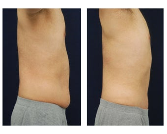 Abdominoplasty - Tummy Tuck 396153