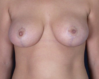 Breast Reduction after 285298