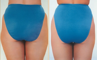 Liposuction before 270019