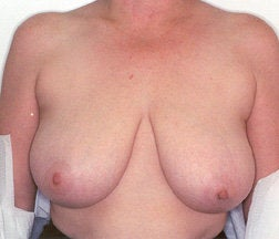 Breast Reduction before 234015