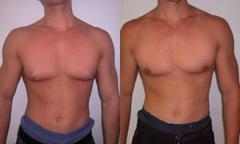 Gynecomastia  before 341117