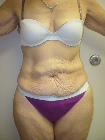 Tummy Tuck before 275985