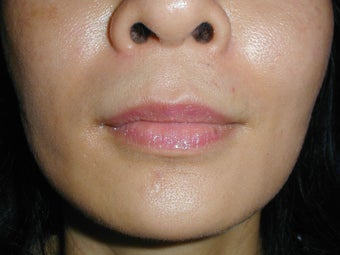 Radiesse in smile lines (Nasolabial Folds) after 100937