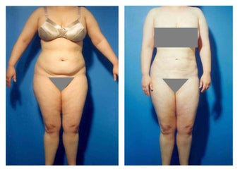 Liposuction before 636296