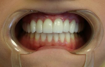 Upper arch make over with veneers and crowns after 625407