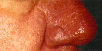 Severe Acne Rosacea after 272034