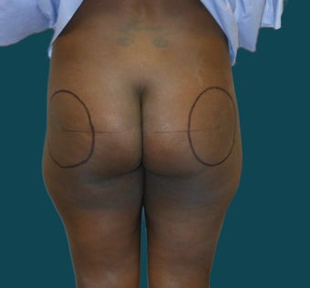 Buttock Augmentation before 639292