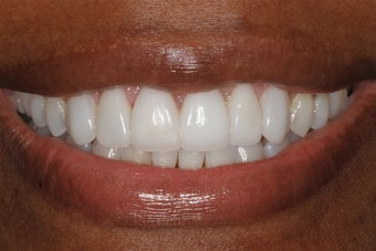 Cosmetic Dentistry after 298657