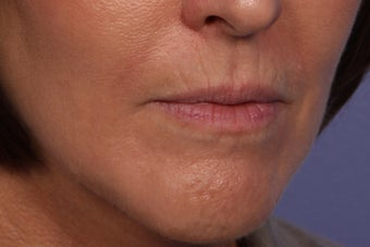 Botox and Juvederm Ultra Plus to Upper Lip 308354