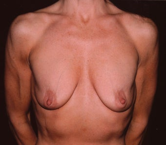 Breast Augmentation before 410353