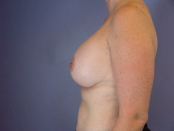 Circumareolar Breast Lift with Breast Implants after 309739