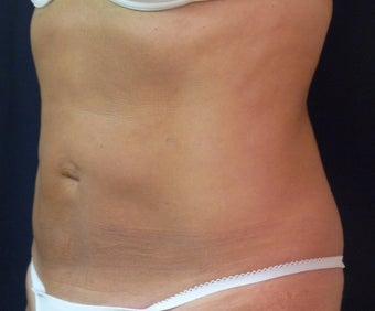 Smart Water Lipo after 216525