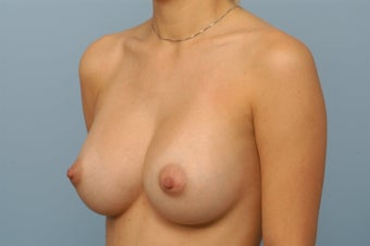 Breast Augmentation with Silicone Gel Implants 344242