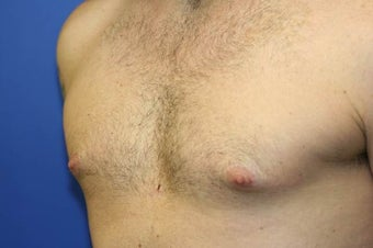 Smart-Lipo of the Chest, Liposuction, Gynecomastia 402440