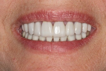 Porcelain Veneers after 391564