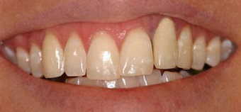 Invisalign, whitening, porcelain veneers and porcelain bridge before 119961
