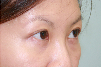 Upper blepharoplasty after 507870