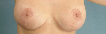 Areola Reduction and Breast Augmentation after 100248