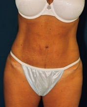Tummy Tuck after 634288