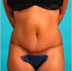 Tummy Tuck after 55085
