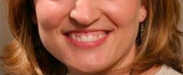 Botox for a gummy smile before 371663