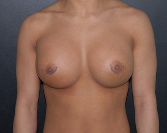 breast implant revision after 334108