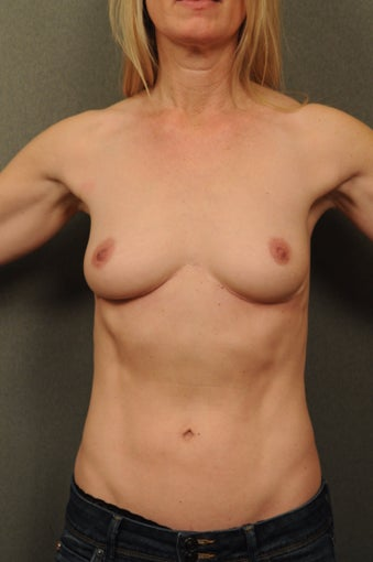 Reverse Abdominoplasty after 551401