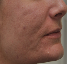 Acne Scarring before 426029