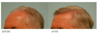 Hair Transplant after 140427