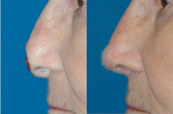 Nasal Reconstruction after Mohs Surgery before 597129