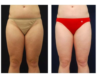 Liposuction before 397096