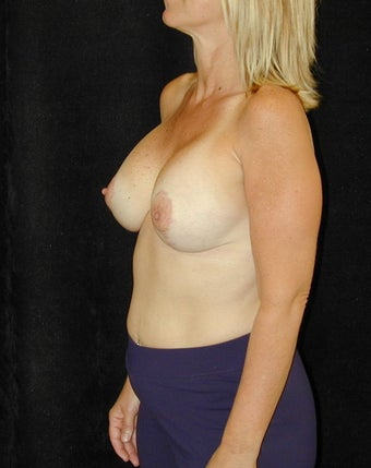 Breast Implant Revision  after 98381