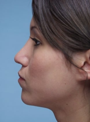 Young Woman in her 20's Underwent a Rhinoplasty after 626789