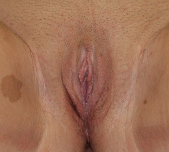 Labiaplasty after 260139