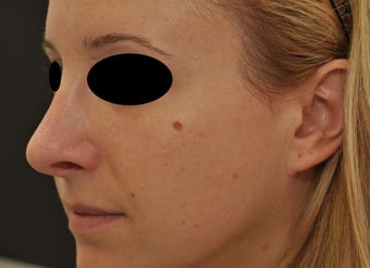 Non-surgical rhinoplasty after 182427