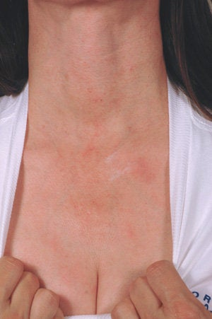 Laser treatment for neck and chest sun damage before 199408