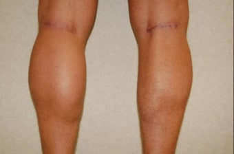 calf implants after 258894