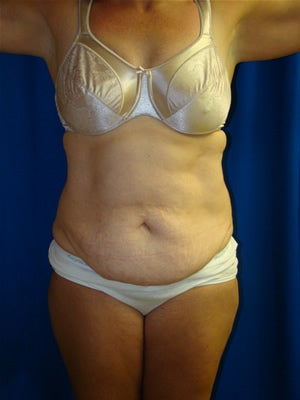 Tummy Tuck Surgery (abdominoplasty) and Liposuction before 119470