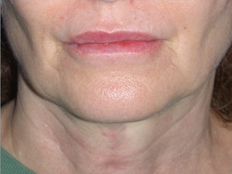 Necklift after 208447