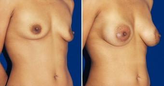 Breast Implants after 494489
