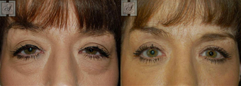 Blepharoplasty before 314257