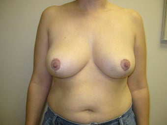 Breast Reduction after 273940