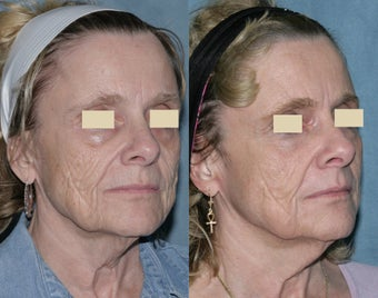 Fraxel repair with C02/Erbium lasers for upper lip wrinkles before 104333