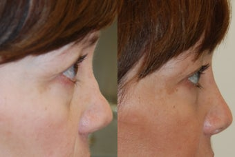 Non-Surgical Rhinoplasty with Silikon-1000. Profile refinement after previous rhinoplasty surgery. before 354517